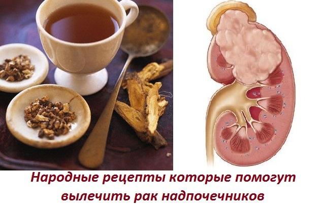 Надпочечники: лечение народными средствами для женщин и мужчин в домашних условиях, в том числе опухоли