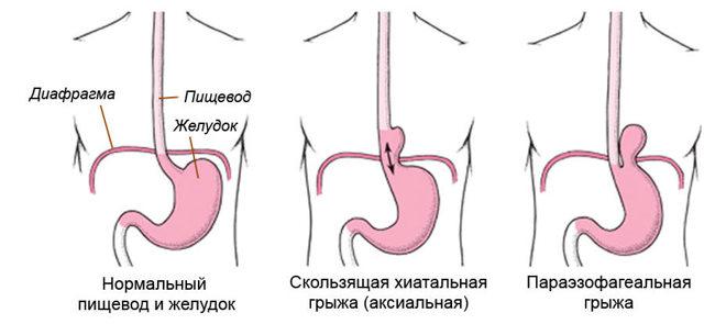 Грыжа поджелудочной железы: симптомы и особенности