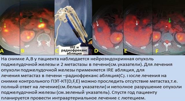 Метастазы в поджелудочной железе: симптомы и лечение