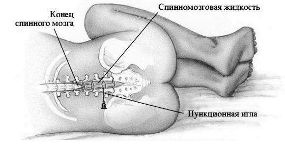Синдром Уотерхауса-Фридериксена: основные причины, патогенез при менингококковой инфекции, лечение у детей