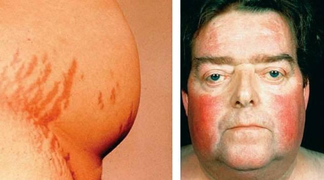 Гиперплазия надпочечников: врожденная у детей и у взрослых, нодулярная, узловая, диффузная, симптомы гиперплазии коры, ножки, лечение