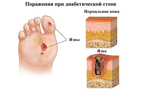 Диабетическая полинейропатия, ее виды: сенсорная, сенсомоторная, периферическая, диабетическая, автономная. Классификация нейропатии, ее формы, патогенез, симптомы, боли