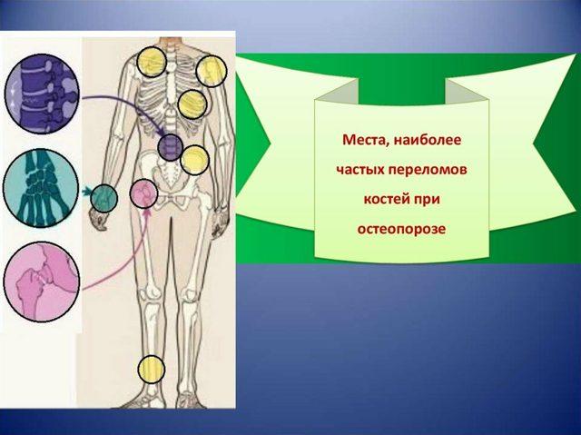 Остеопороз при климаксе: признаки и симптомы, лечение препаратами, как избежать, профилактика