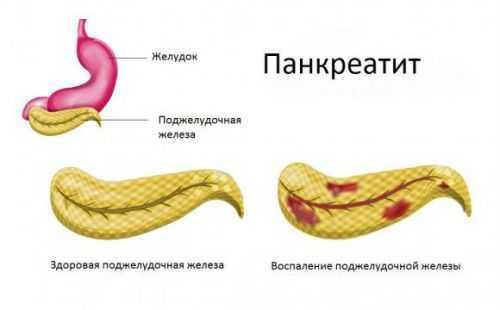 Внешнесекреторная функция поджелудочной железы (экзокринная и эндокринная)