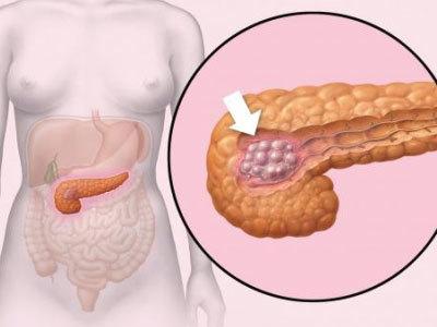 Острый и хронический панкреатит: отличия стадий