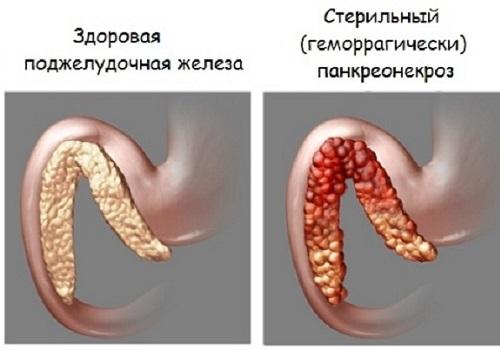 Виды панкреатита поджелудочной железы и панкреонекроза