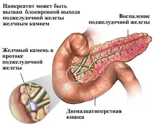 Аюрведа для поджелудочной железы (лечение)