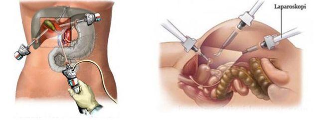 Лапароскопия поджелудочной железы: что это такое?