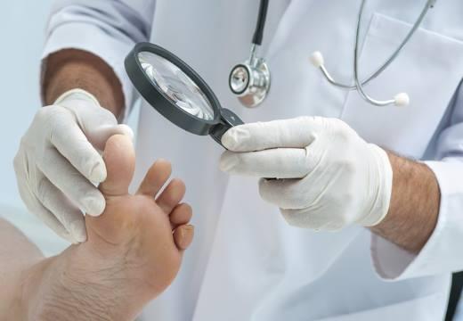 Раны при сахарном диабете: почему плохо заживают, гнойные, незаживающие, мокнущие, средства для обработки и лечения