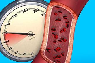 Давление при панкреатите: что делать, если повышенное?