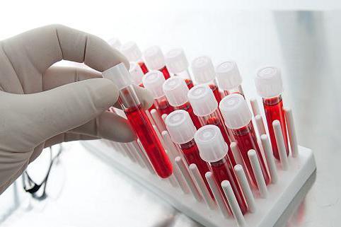 Анализы на женские гормоны: когда, по каким дням и какие сдавать, как правильно подготовиться, расшифровка результатов женских половых гормон, норма, сколько готовятся