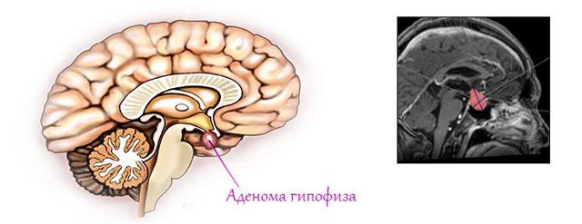 Аденома гипофиза: основные причины появления опухоли головного мозга у женщин и мужчин, симптомы, гормоны, прогноз