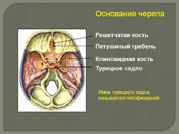 Рентген гипофиза, аденомы, турецкого седла
