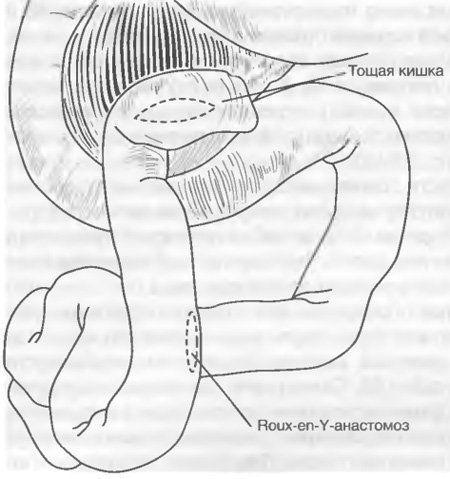 Стеноз поджелудочной железы: что это и как лечить?