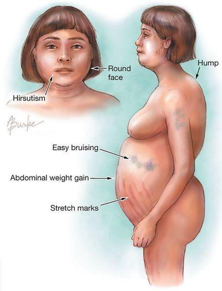 Иценко-Кушинга: диагностика, какие анализы нужно сдать при болезни
