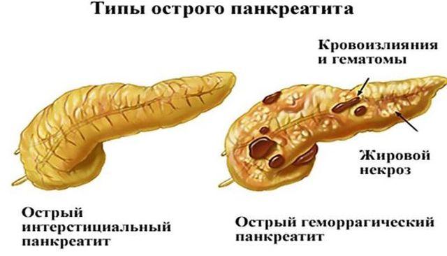 Изменение поджелудочной железы как последствие панкреатита