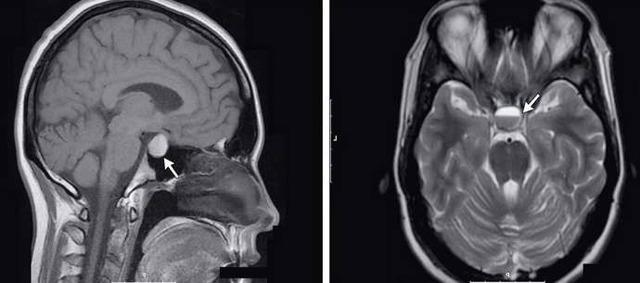 Неоднородная структура гипофиза: признаки, картина диффузно-неоднородной, МРТ, как питаться