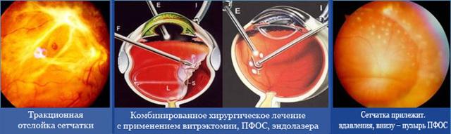 Диабетическая ретинопатия: медикаментозное лечение пролиферативной, непролиферативной ретинопатии каплями, уколами, препаратами, народными средствами, операцией, лазером