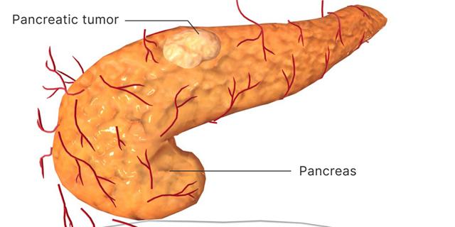 Опухоль поджелудочной железы - лечение, профилактика, диагностика