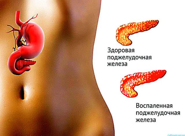 Репешок при панкреатите поджелудочной железы