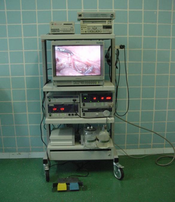 Удаление надпочечника адреналэктомия: ретроперитонеоскопическая, лапароскопическая, двусторонняя, слева, справа, подготовка, техника операции, последствия