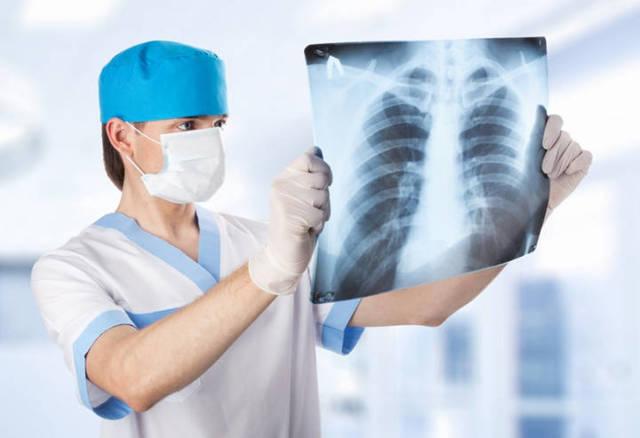 Удаление вилочковой железы: когда показана операция у взрослых, особенности удаления тимуса