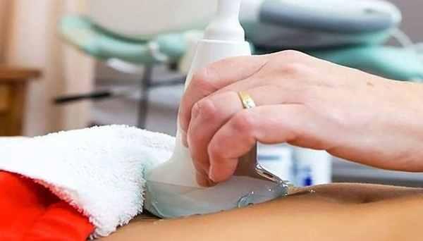 УЗИ яичников у женщин: норма, размер, как проходит, на какой день, как делают, как подготовиться проверить яичники, расшифровка