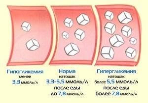 Сыпь при диабете: причины на теле, ногах, лице, красная, у ребенка, взрослых, зуд, лечение при сахарном диабете