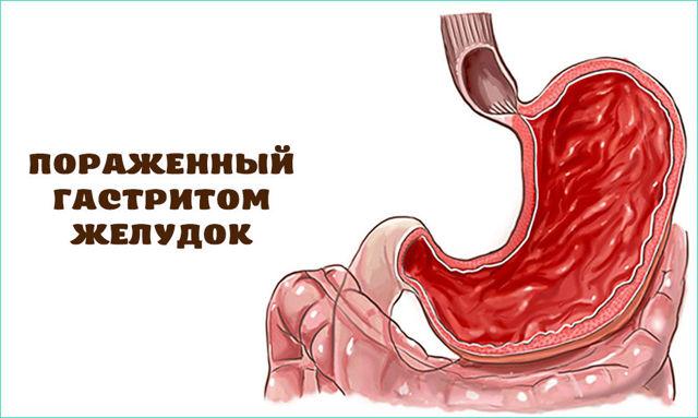 Как отличить гастрит от панкреатита: в чем разница?