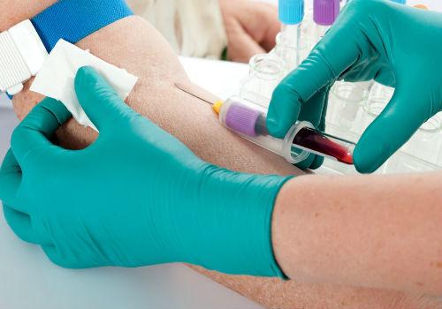 Амилаза при остром и хроническом панкреатите