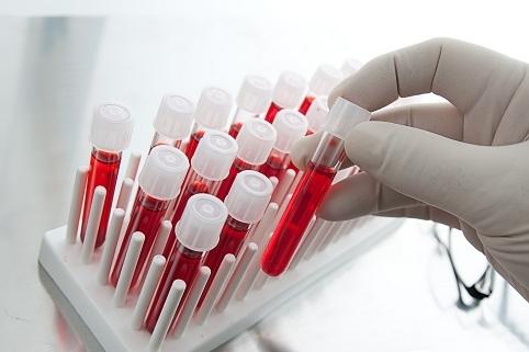 Тимома средостения: причины злокачественного образования переднего средостения, веретноклеточная тимома, прогноз, лечение