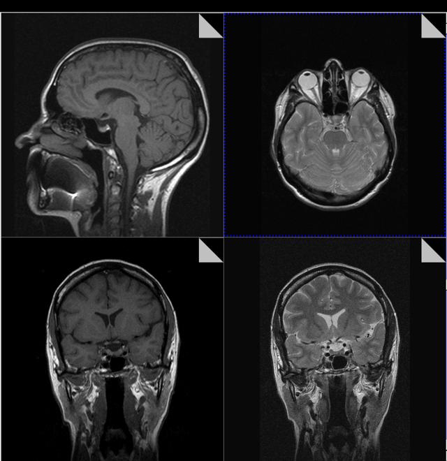 МРТ гипофиза: как делают без контраста и с ним, что показывает, подготовка, норма и опухоль