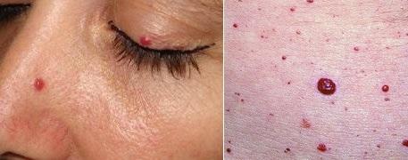 Высыпания на коже при болезни поджелудочной железы