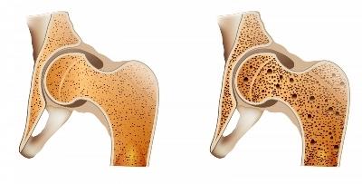 Остеопороз стопы: виды поражения костей - диффузный, пятнистый, околосуставный, после удаления шишек на ногах, симптомы и лечение