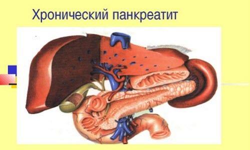 Симптомы панкреатита (причины и лечение заболевания)