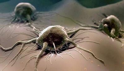 Рак поджелудочной железы: код по МКБ-10