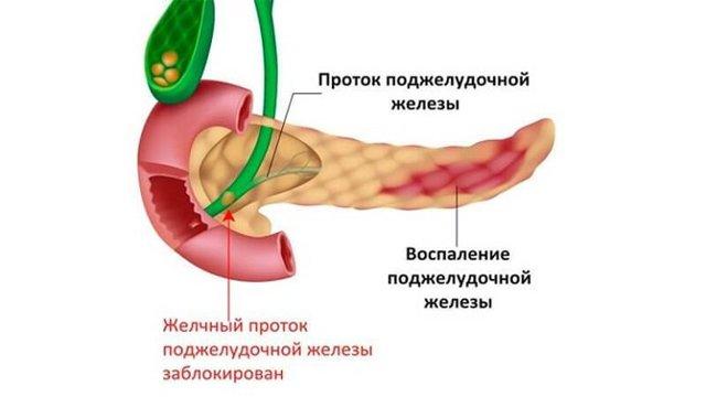 Можно ли есть цветную капусту и брокколи при воспалении поджелудочной железы