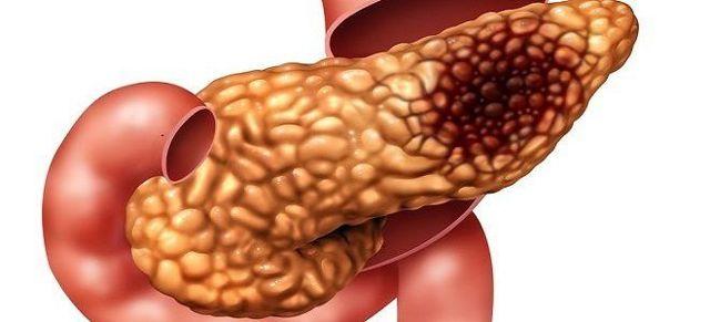 Что такое фибролипоматоз поджелудочной железы?