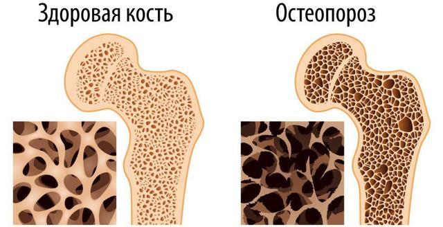Остеопороз и последствия: основные симптомы у детей, пожилых людей, лечение