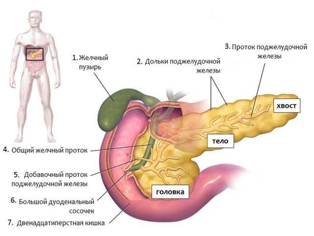 Панкреатит поджелудочной железы при диабете - лечение