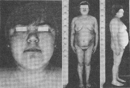 Болезнь и синдром Иценко Кушинга: причины, симптомы, диагностика, отличия, прогноз у детей